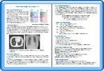 低線量CT肺がん検査についての詳細